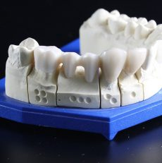 Affordable Dentures & implants in Bhandup