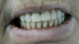 magicalsmiles after treatment