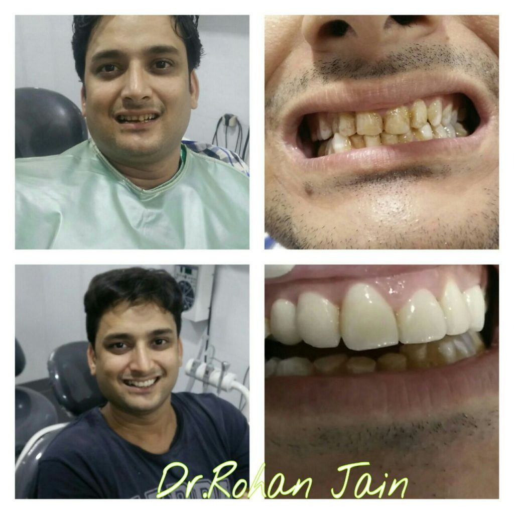 Teeth restoration - dental clinic Bhandup