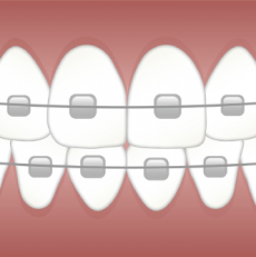 How dental braces work to straighten your teeth?