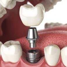 Why Dental Implants are Worth It?
