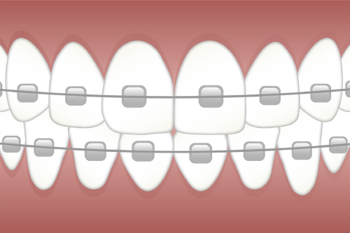 Dental Braces