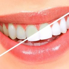 Some important Teeth Whitening Facts