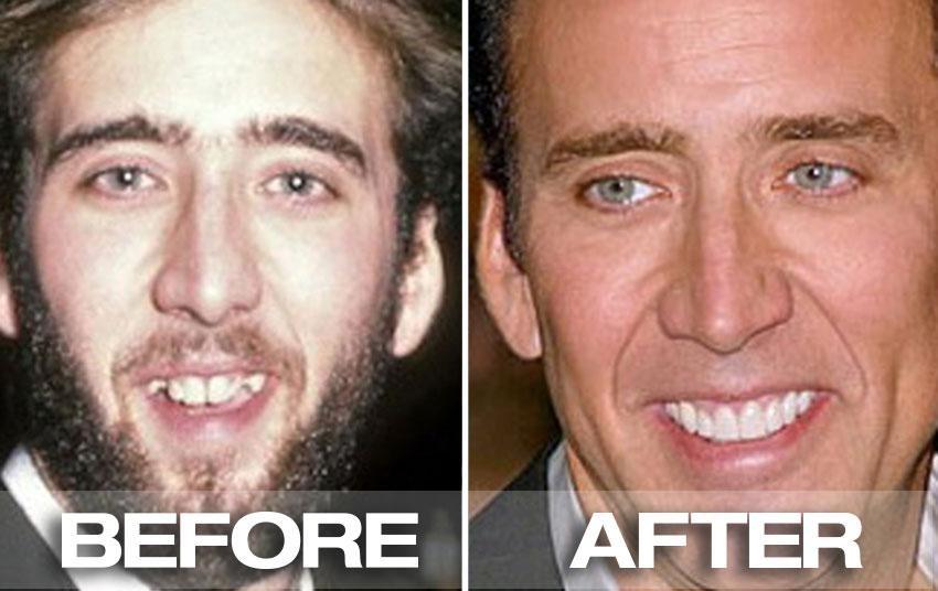 Celebrity dental story