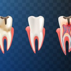 Things to Know Before Root Canal